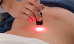Laser infravermelho ajuda a combater gordura no fígado